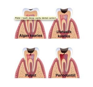 hambajuurekahjustus